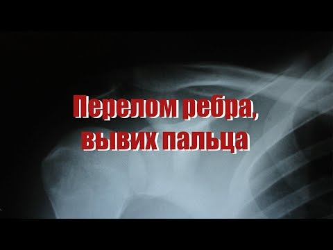 Embedded thumbnail for перелом ребра вывих